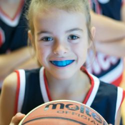 Custom Mouth Guards